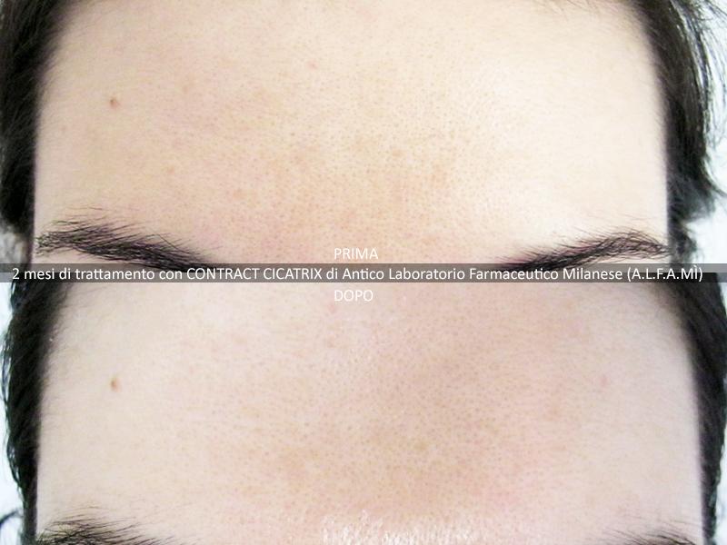 2 mese di trattamento contract cicatix fronte